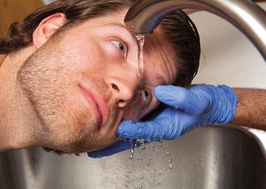 Xối nước rửa sạch hóa chất gây tổn thương mắt